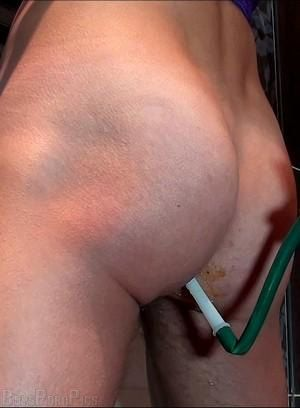 Gay enema Porn Pictures - 38 Galleries
